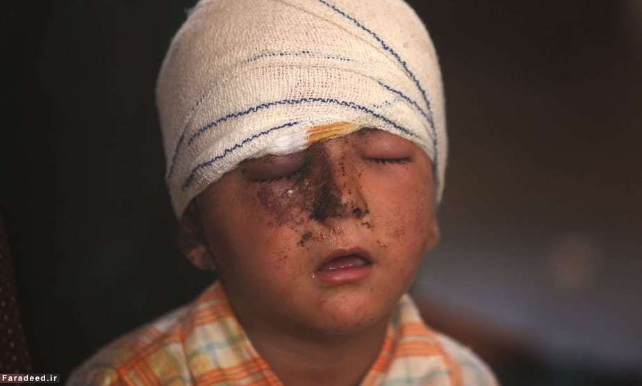 کودک زخمی در جنگ نیروهای عراق و داعش در تلعفر