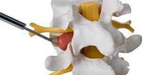 جراحی بسته دیسک کمر و گردن با لیزر