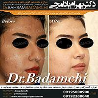 جراحی مدرن بینی توسط دکتر بهرام بادامچی