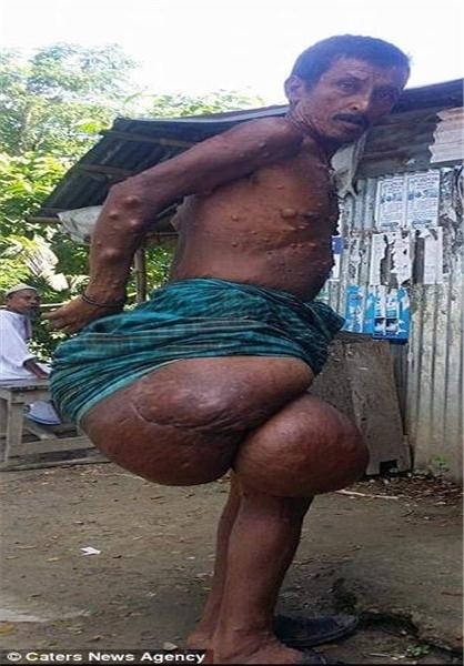 تومور ۳۸ کیلویی روی پای مرد بنگلادشی+تصویر