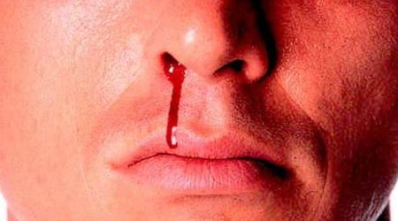 آیا باید نگران خون دماغ شدن باشیم؟