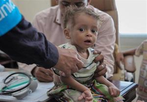 ارسال نهصد هزار واکسن بیماریهای کشنده به صنعا