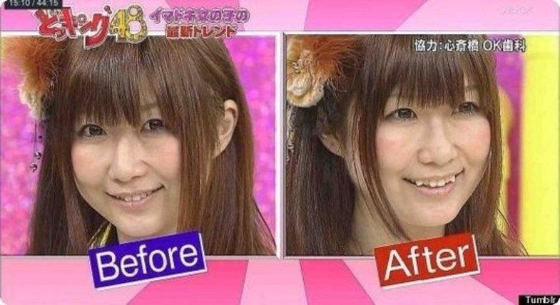 جراحی زیبایی تازه خانم ها ژاپنی +تصاویر