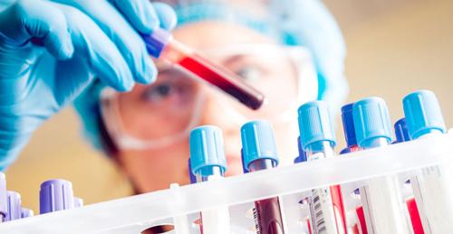 آزمایش هایی که زنان لازم هست انجام دهند