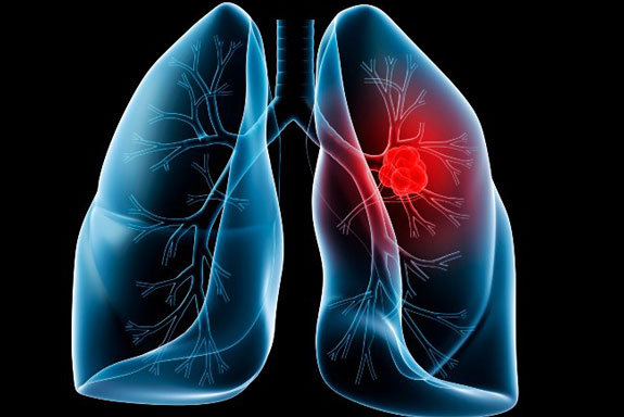 ۷ گزینه ای که منتج به سرطان ریه می گردد