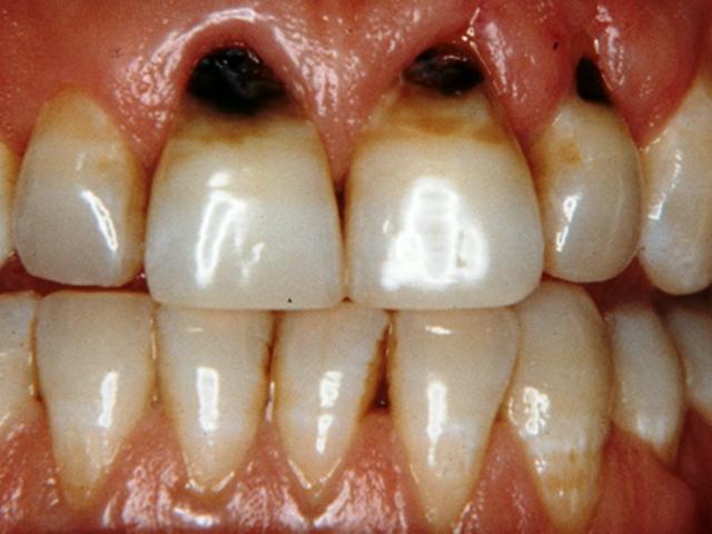 این دوا ها دندان را نابود می کند