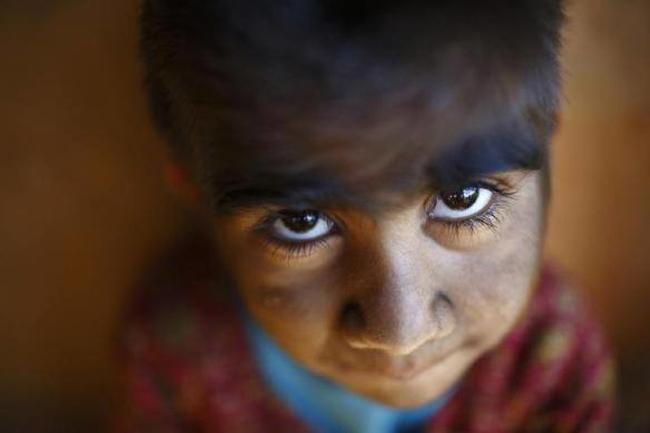 خاصترین بچههای دنیا که از عجایب خلقت به حساب میآیند