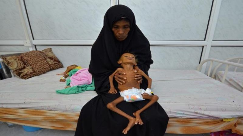 یمن تبدیل به جهنم کودکان شده است