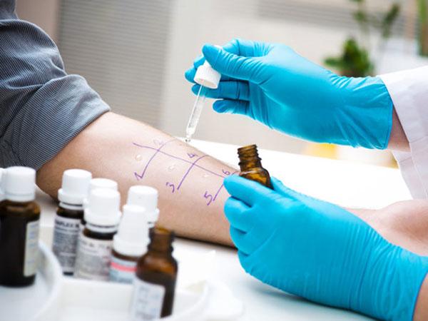 آلرژی به بادمجان؛ علائم، درمان و غذاهایی که باید اجتناب کرد
