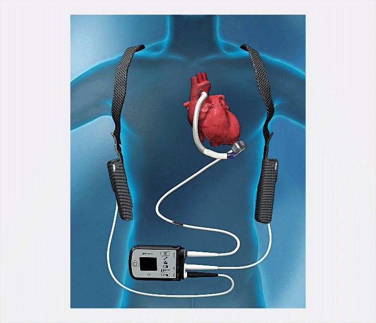 تعبیه قلب مصنوعی/انتشار فوری/میسوزد